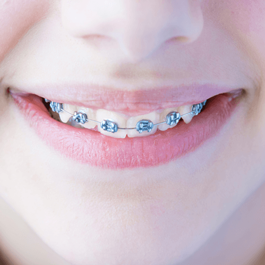 Types Of Braces   Specialist Orthodontist In Auckland